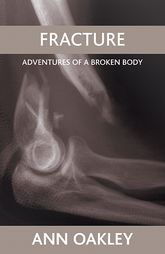 FractureAdventures of a broken body